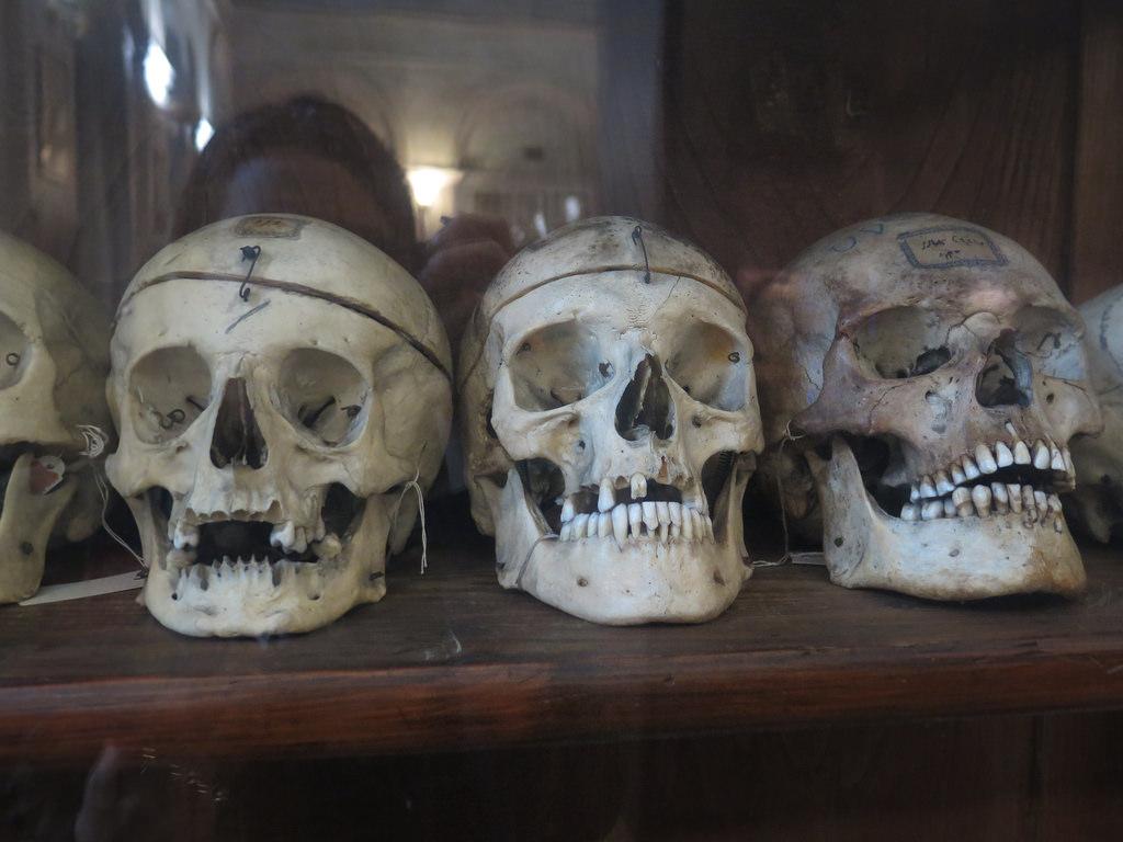 Crani del Museo Lombroso